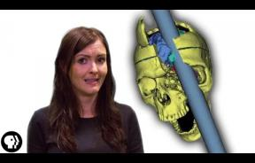 Phineas Gage: How The Man With A Hole In His Brain Survived His Gruesome Ordeal