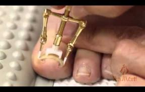 This Weird New Japanese Contraption That Fixes Ingrown Toenails Is Gross But Satisfying