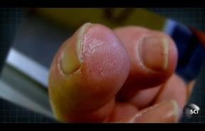'Magical Pixie Dust' From Pig's Bladder Helps Man Regrow Human Tissue On Severed Finger