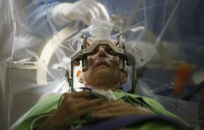 Deep Brain Stimulation neurosurgery
