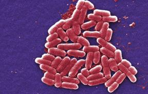A magnification of bacterium.