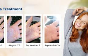 Eczema Treatment : Before & After
