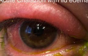 Chalazion with lid edema